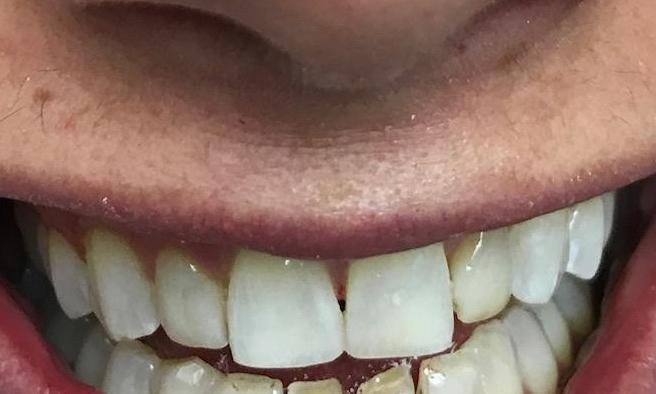 Chipped-Front-Teeth-After-Image