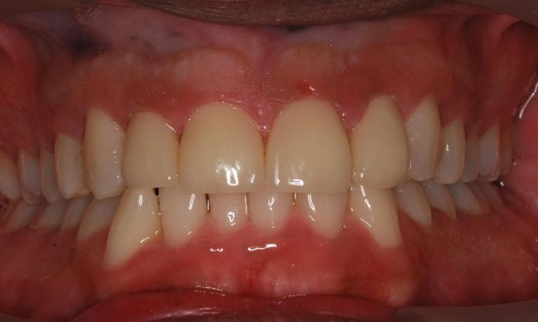 Removal-of-Gold-Crowns-Anterior-Zirconia-Crowns-After-Image
